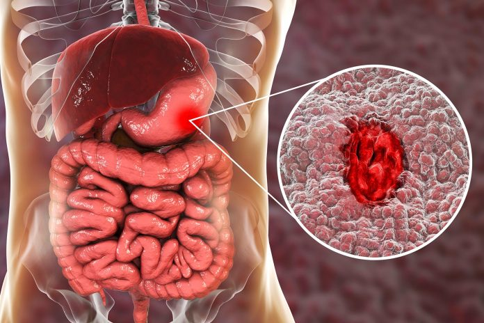 1800x1200 visual guide to stomach ulcers slideshow