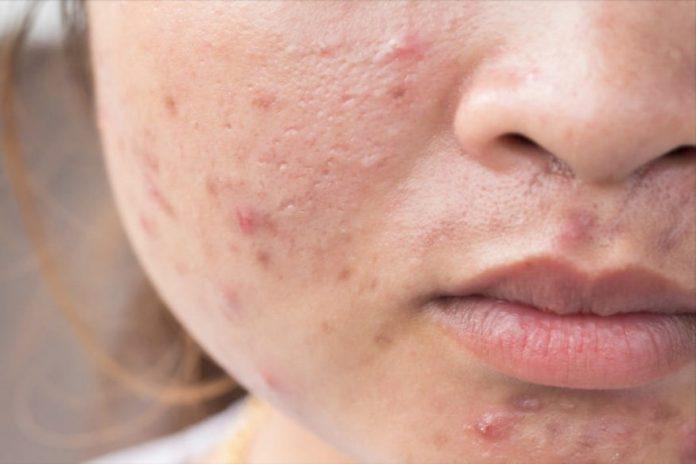pimple acne